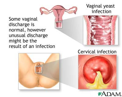 Does a yeast infection have an odor