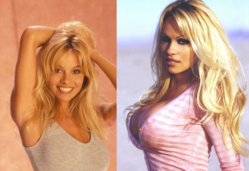 The Best And Worst Of Hollywood Plastic Surgery Before And