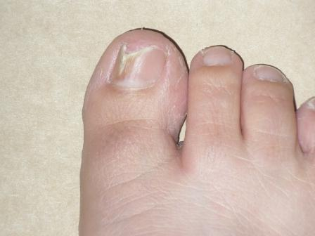 Home Remedies For Cracked Toenails