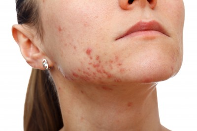Food Allergies and Acne: What Your Face Is Trying to Tell You