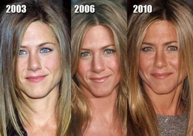 Jennifer-Aniston-nose-job-2003-2010